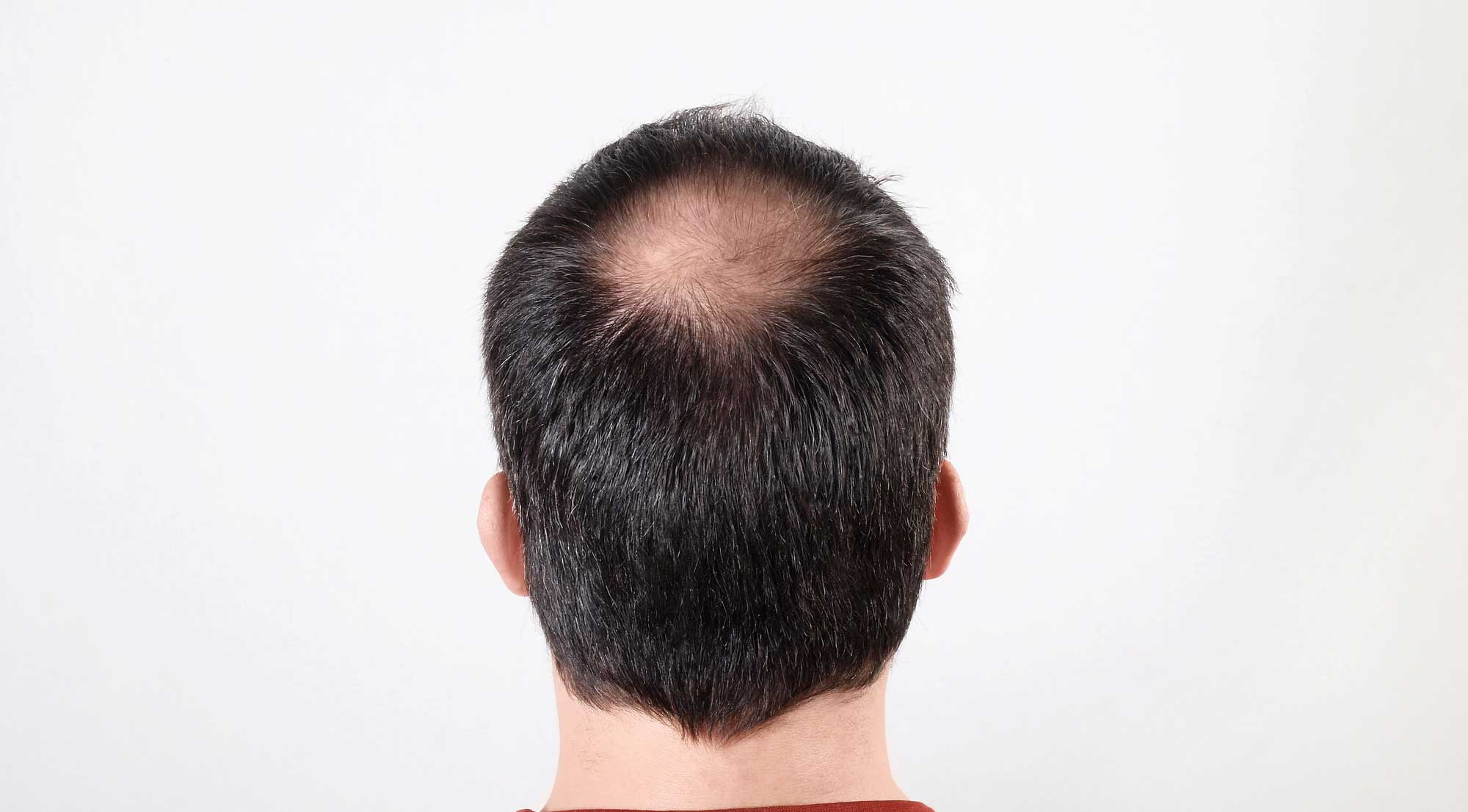 Scientists Have Found a Way to Use Stem Cells to Grow New Hair