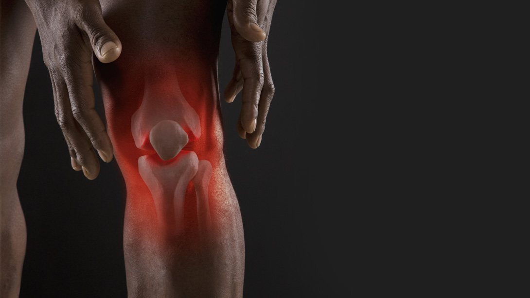 6 Exercises that Will Teach you How to Strengthen Knees