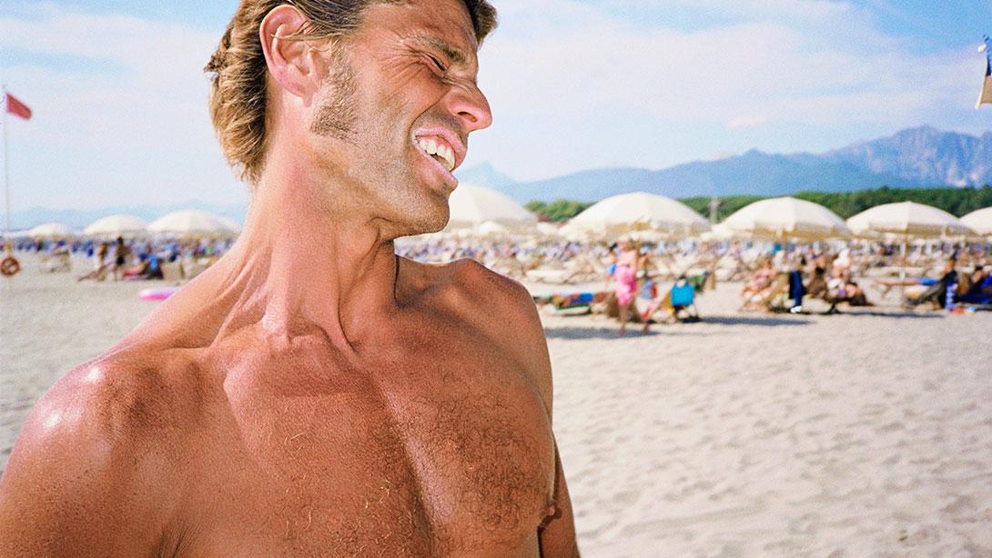 sunburn_beach