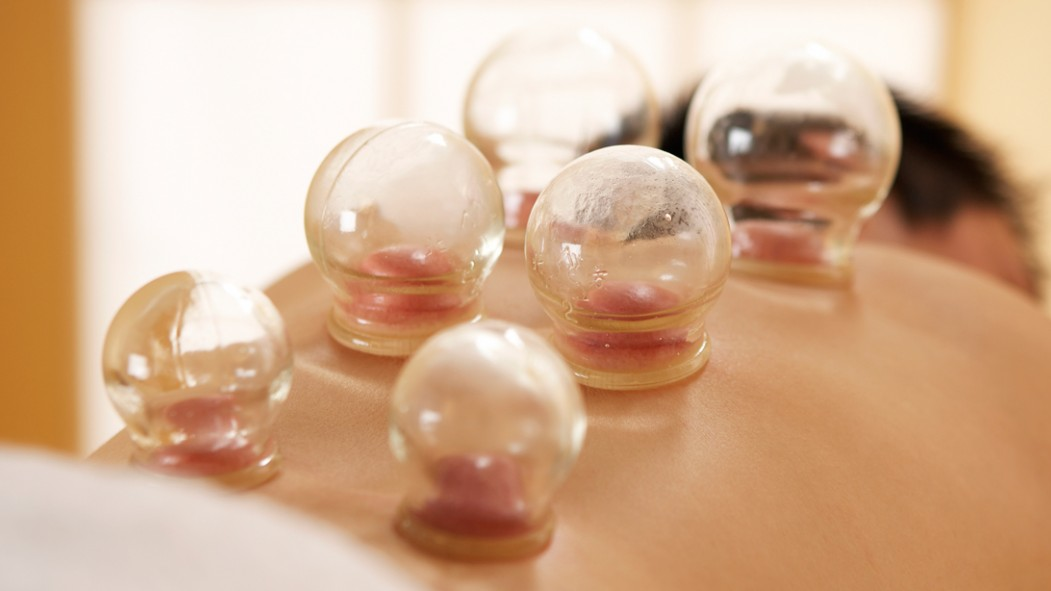 Cupping Therapy thumbnail