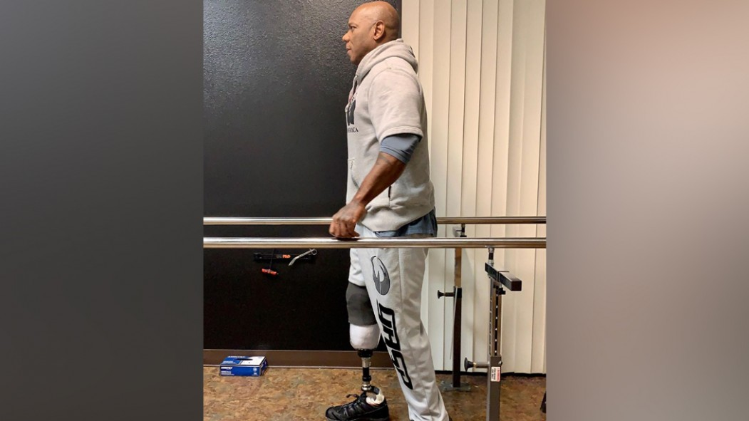 Flex Wheeler Posts Update Taking First Steps With Prosthetic Leg thumbnail
