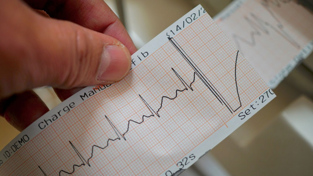 Heart Rate: What Yours Should Be, The Dangers, And More thumbnail