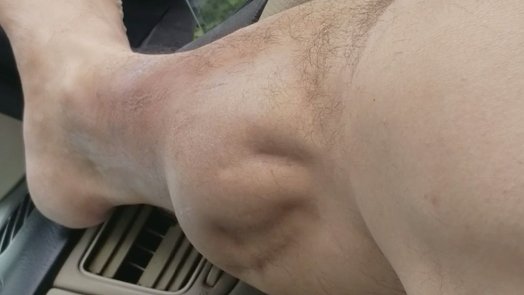 Leg Cramp  thumbnail