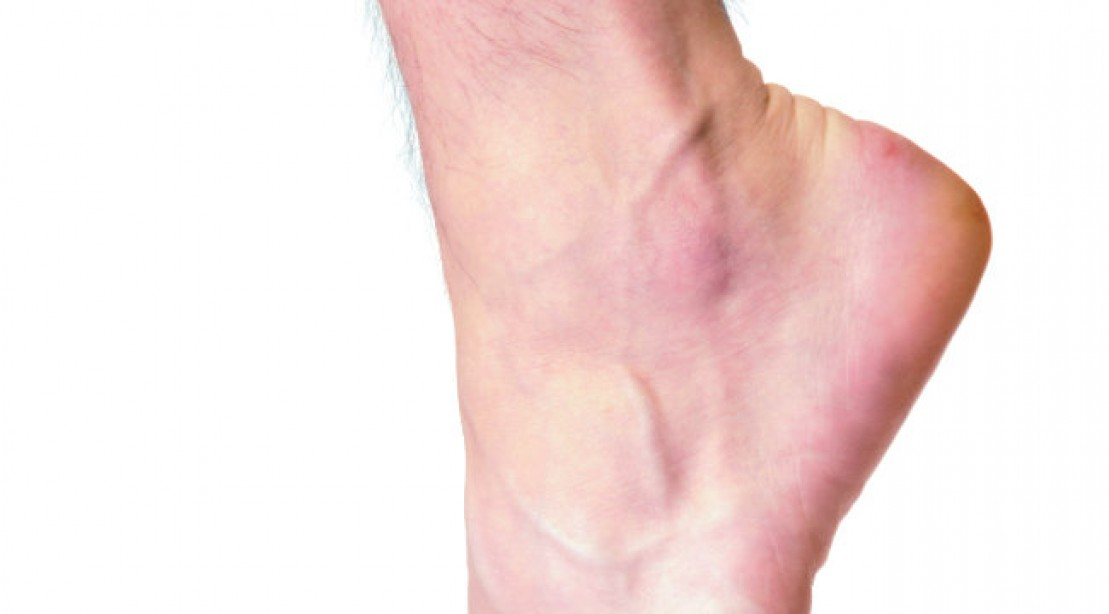 How to Deal with Ankle Pain