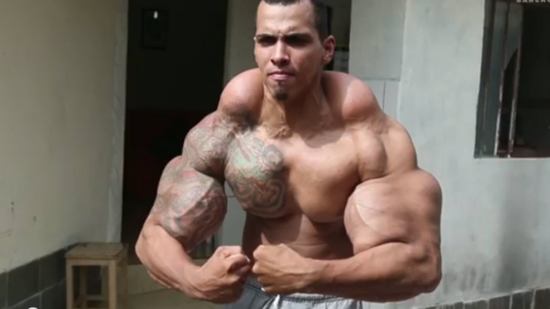 Quest to Look Like Incredible Hulk Backfires