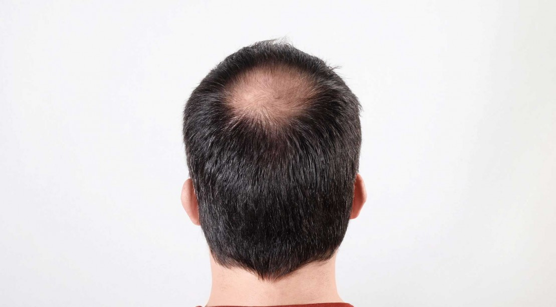 Scientists Have Found a Way to Grow New Hair