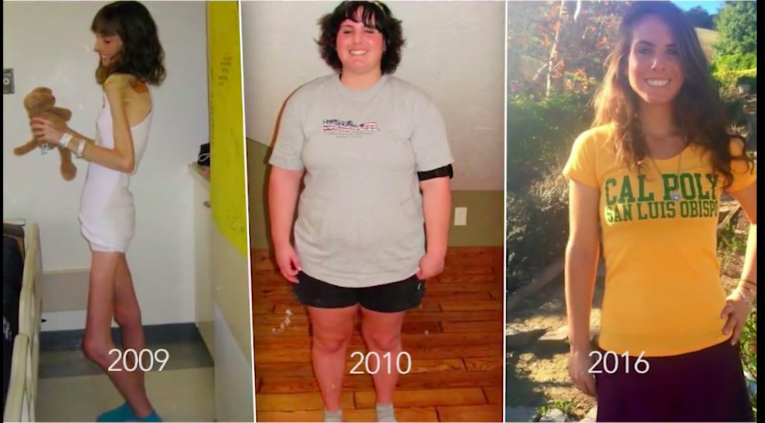 Finding Balance After Extreme Anorexia and Dangerous Binging