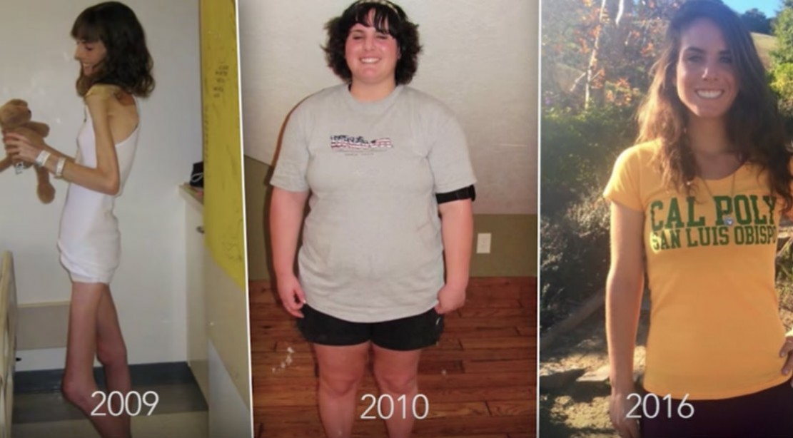 WATCH: Brittany's Incredible Battle With Eating Disorders Turned Her to a Life of Health and Nutrition