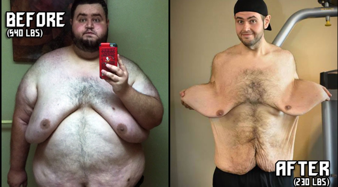 John Allaire Loses Over 300 Pounds in Incredible Transformation