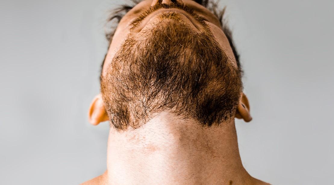 Neck-Beard-Upward-Shot