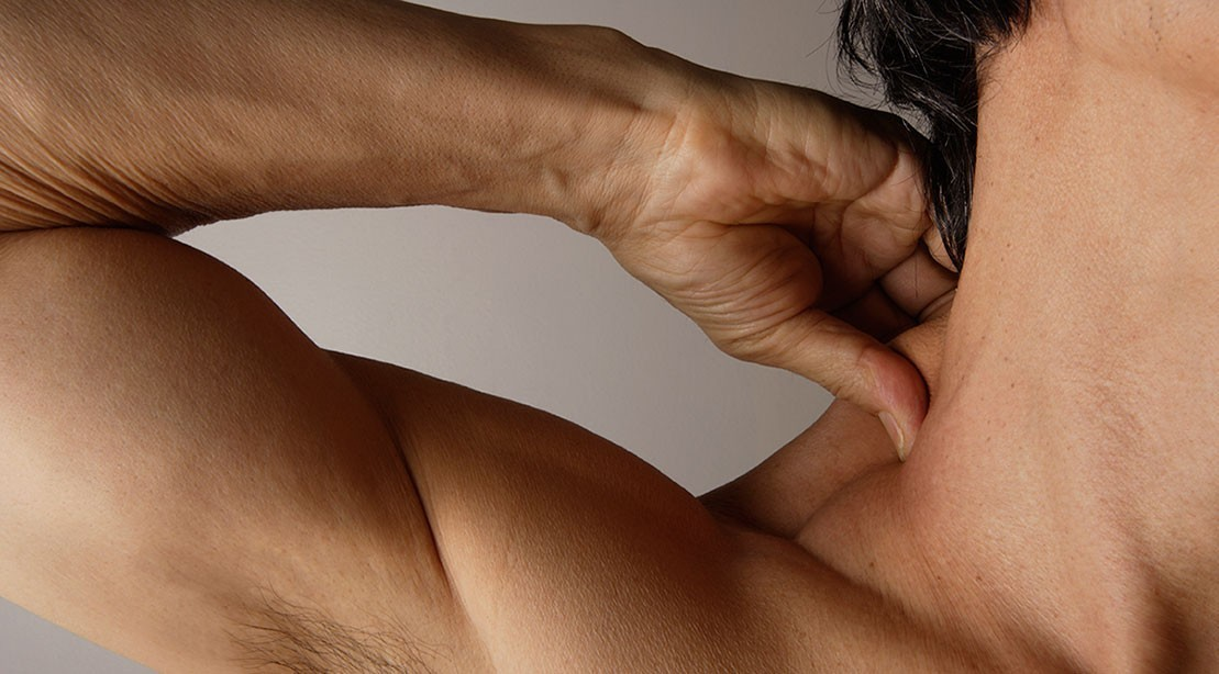 Is Cracking Your Neck Dangerous? How It Can Lead to a Stroke