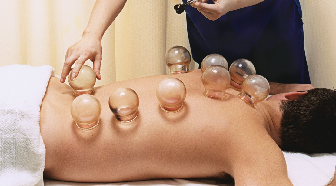 6 Things To Know About Cupping Therapy Muscle Fitness