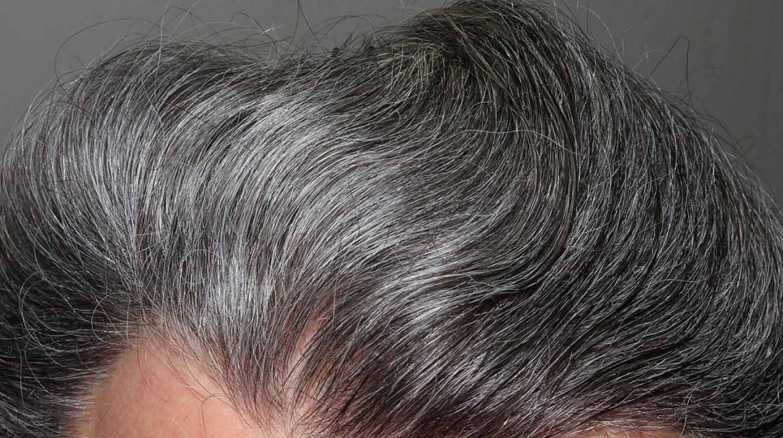 Scientists may have found the root cause of going gray and balding