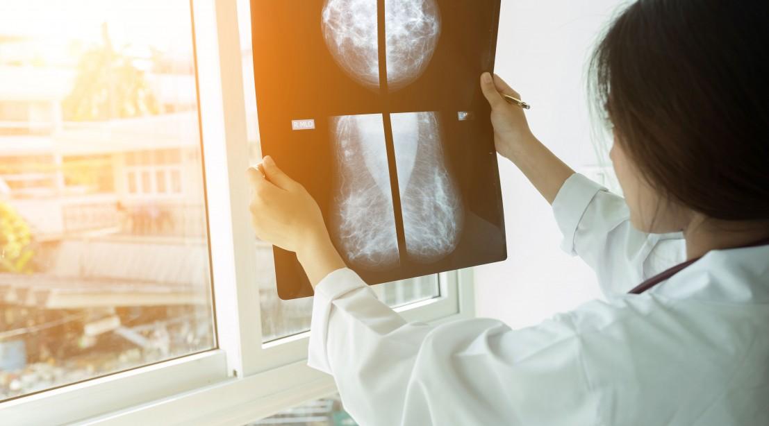 Doctor Viewing Mammogram Result