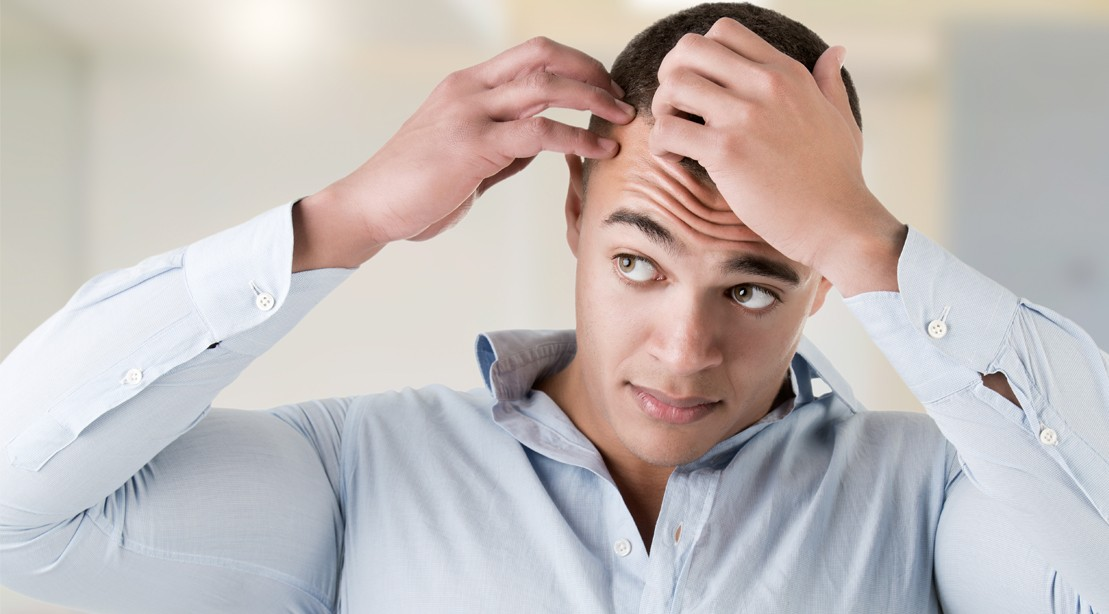 Here's Why a Receding Hairline Could Reveal Your Cancer Risk