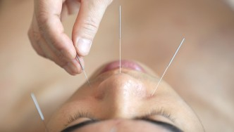 Acupunture-Needles-On-Male-Face