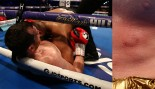 Outlandish Boxer Disqualified After Bitting Opponent Several Times thumbnail