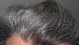Scientists may have found the root cause of going gray and balding thumbnail