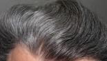 Older Man With Grey Hair  thumbnail