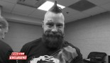 Sheamus With Head Injury thumbnail
