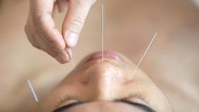 Acupunture-Needles-On-Male-Face thumbnail