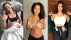 Women Are Taking to Social Media to Reclaim Their Bodies After Beating Breast Implant Illness