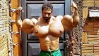 """""""Bodybuilder"""" Blows Up Pecs to Ridiculous Size With Synthol"""